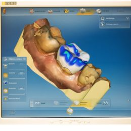 Cerec Screen - Zahnarztpraxis Cramm Muttenz